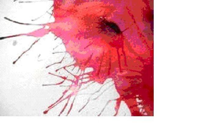 Les taches de pigment sur le cou et la zone de la décolleté
